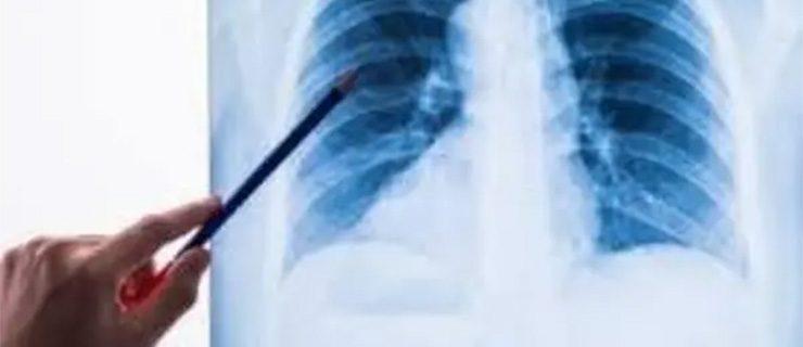 104-pneumonia