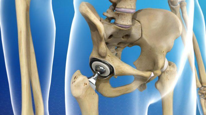 ehndoprotez-tazobedrennogo-sustava